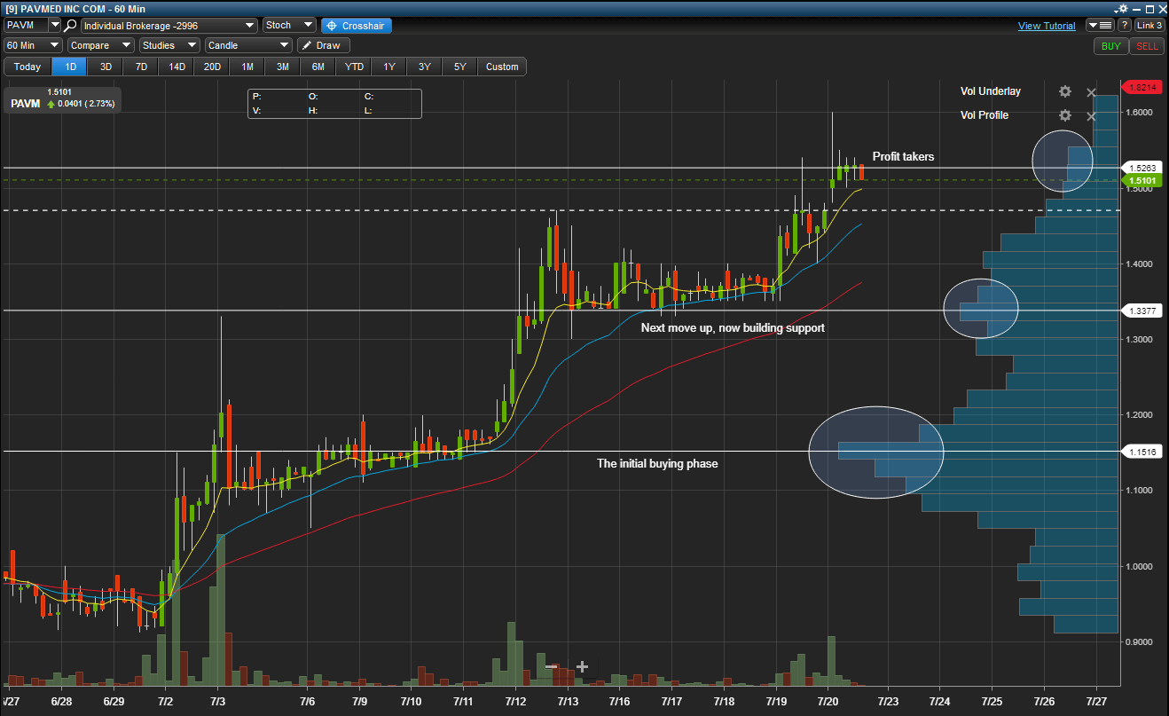 Price by Volume - True Trading Group